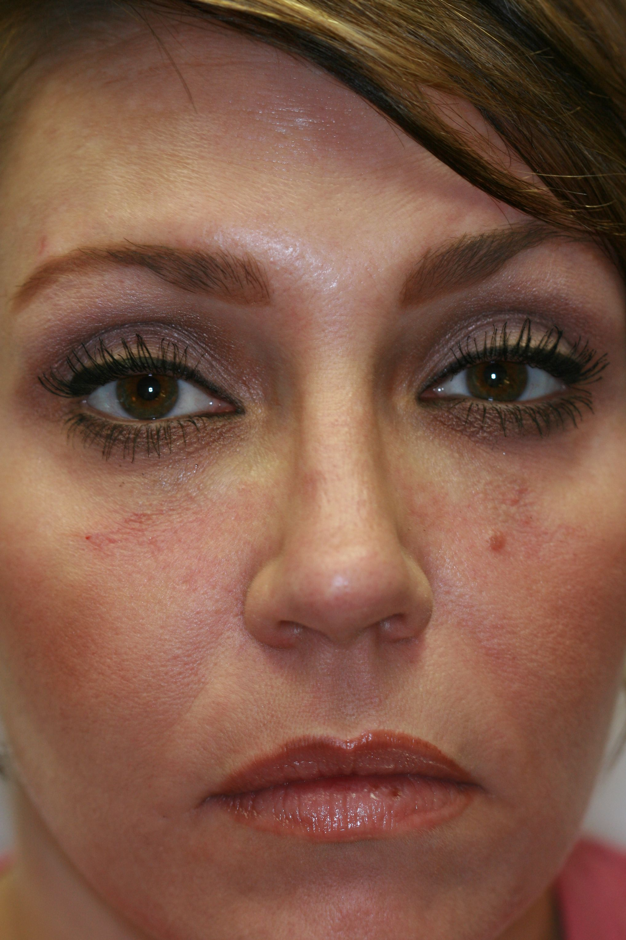 Vampire facelift (r) using prp with ha